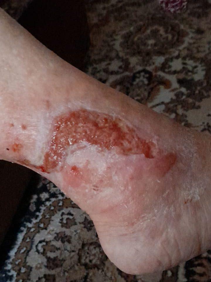 ulcer de gamba venos